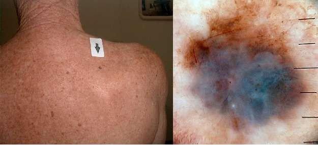 Як не стати жертвою «тихого вбивці»: діагностика та лікування раку шкіри