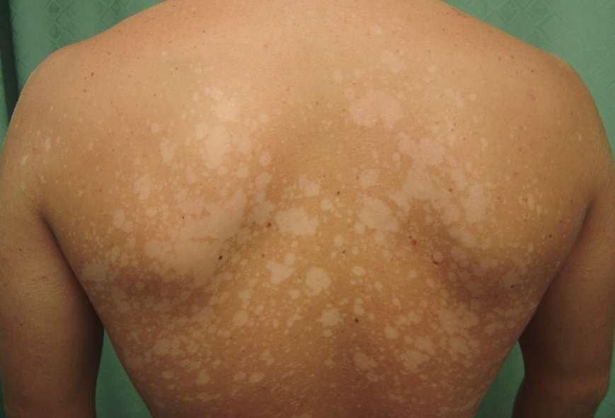 Кольоровий лишай – подарунок від «секонд-хенду», поганої гігієни та зниженого імунітету