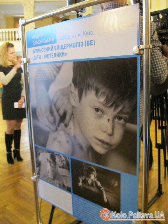 Полтавців знайомили із проблемами і потребами орфанно хворих дітей